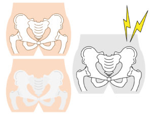 仙腸関節の歪み